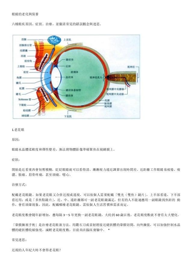 眼睛的老化與保養六種眼疾原因、症狀、治療,並釐清常見的錯誤觀念與迷思。     1.老花眼   原因:眼睛水晶體柔軟度和彈性變差,無法將物體影像準確聚焦在視網膜上。   症狀:開始是近看東西會短...