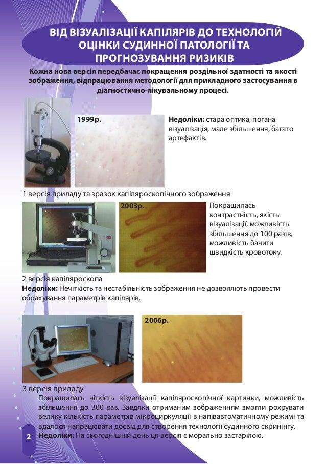 1 версія приладу та зразок капіляроскопічного зображення2 версія капіляроскопа3 версія приладу2ВІД ВІЗУАЛІЗАЦІЇ КАПІЛЯРІВ ...