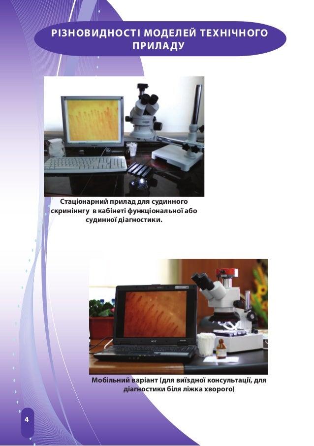 4РІЗНОВИДНОСТІ МОДЕЛЕЙ ТЕХНІЧНОГОПРИЛАДУСтаціонарний прилад для судинногоскриніннгу в кабінеті функціональної абосудинної ...