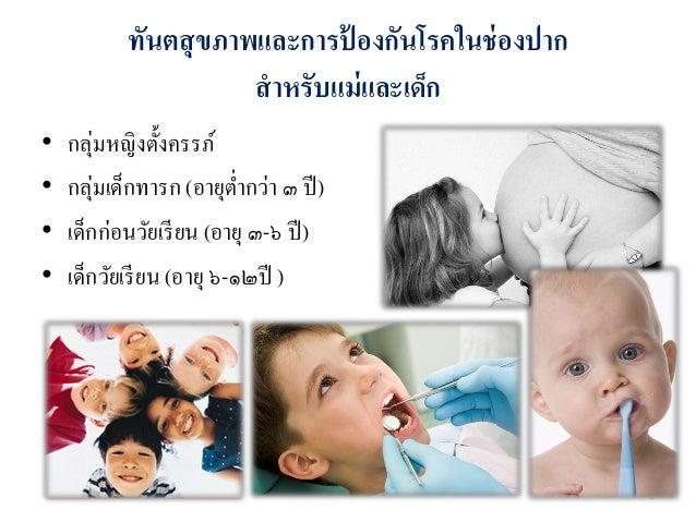 งานส่งเสริมทันตสุขภาพและป้องกันโรคช่องปาก Slide 2