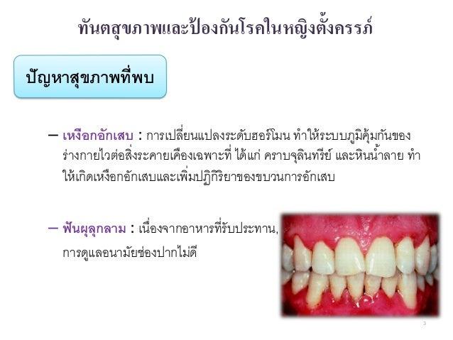 งานส่งเสริมทันตสุขภาพและป้องกันโรคช่องปาก Slide 3