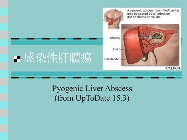感染性肝膿瘍 Pyogenic Liver Abscess (from UpToDate 15.3)