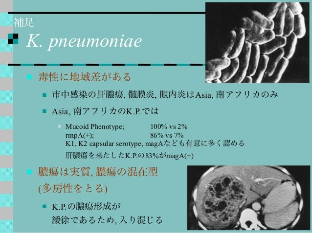 K. pneumoniae  毒性に地域差がある  市中感染の肝膿瘍, 髄膜炎, 眼内炎はAsia, 南アフリカのみ  Asia, 南アフリカのK.P.では  Mucoid Phenotype; 100% vs 2% rmpA(+); ...