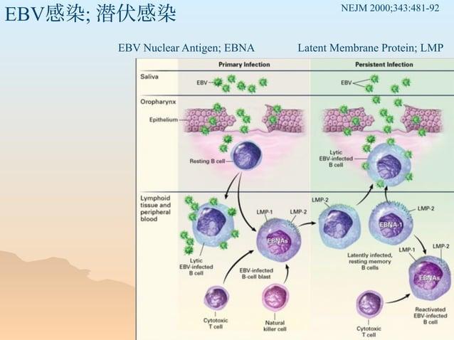 EBV感染; 潜伏感染 EBV Nuclear Antigen; EBNA Latent Membrane Protein; LMP NEJM 2000;343:481-92
