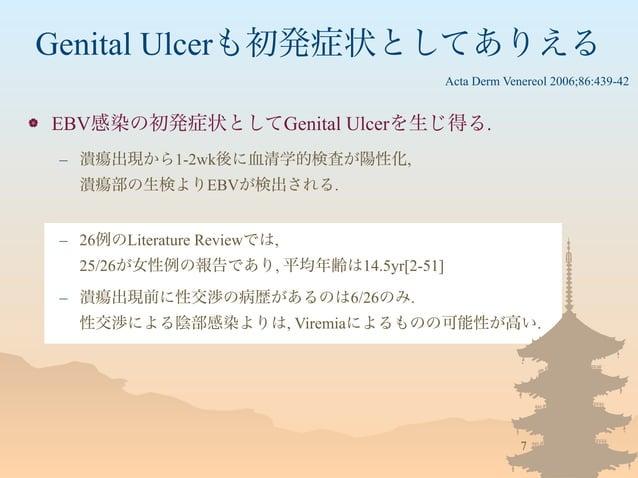 Genital Ulcerも初発症状としてありえる  EBV感染の初発症状としてGenital Ulcerを生じ得る. – 潰瘍出現から1-2wk後に血清学的検査が陽性化, 潰瘍部の生検よりEBVが検出される. – 26例のLiteratur...