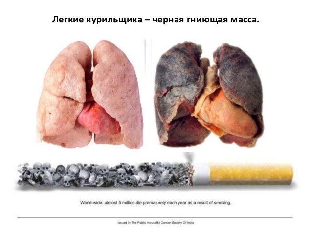 Из-за курения желтеют зубы, воспаляется горло, появляется неприятный запах из-за рта, вызывает три основных заболевания от...