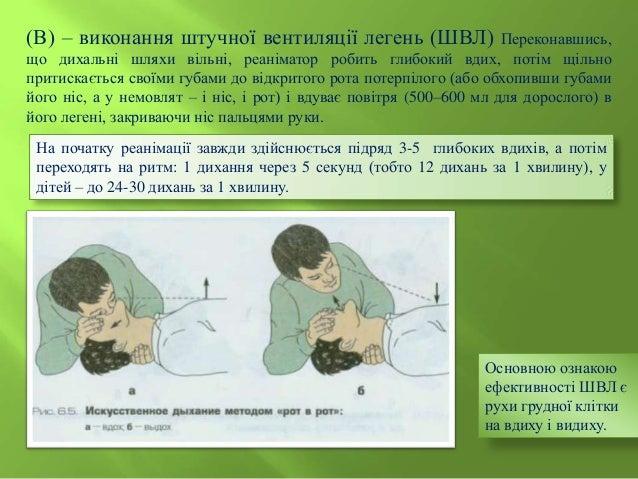 Прекордіальний удар  – застосовують у осіб старшого віку у випадку, якщо реаніматор безпосередньо спостерігав на моніторі ...