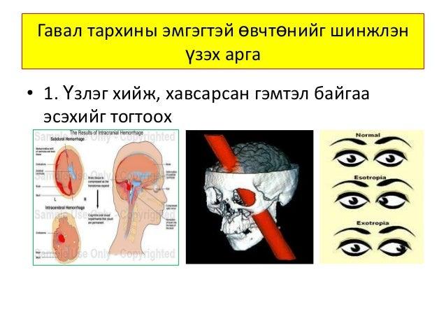 гавал тархины гэмтэлтэй өвчтөнийг шинжлэн үзэх арга Slide 2