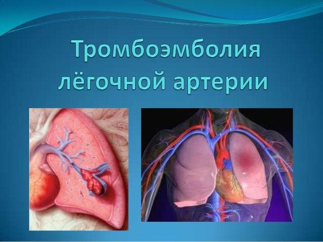 Тромбоэмболия — острая закупорка кровеносного сосуда тромбом оторвавшимся от места своего образования (на стенке сердца, с...