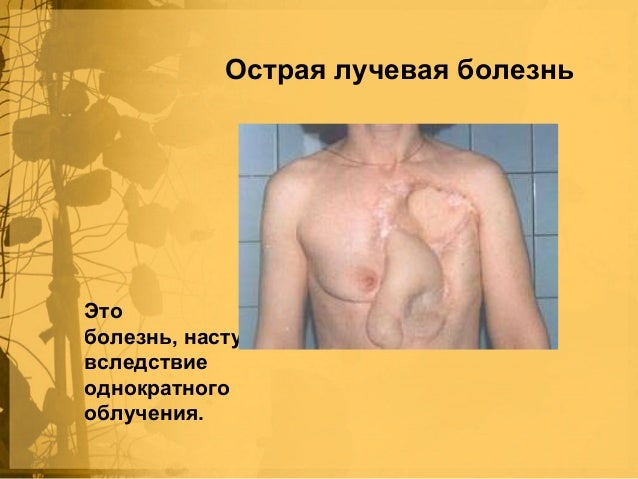 Лечение желчекаменных болезней без операционно