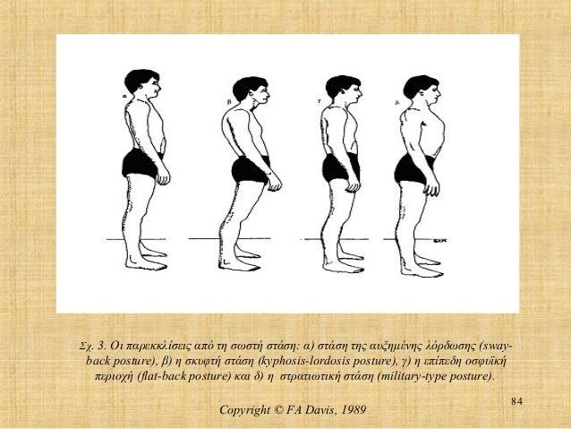 Σχ. 3. Οι παρεκκλίσεις από τη σωστή στάση: α) στάση της αυξημένης λόρδωσης (sway-  back posture), β) η σκυφτή στάση (kypho...