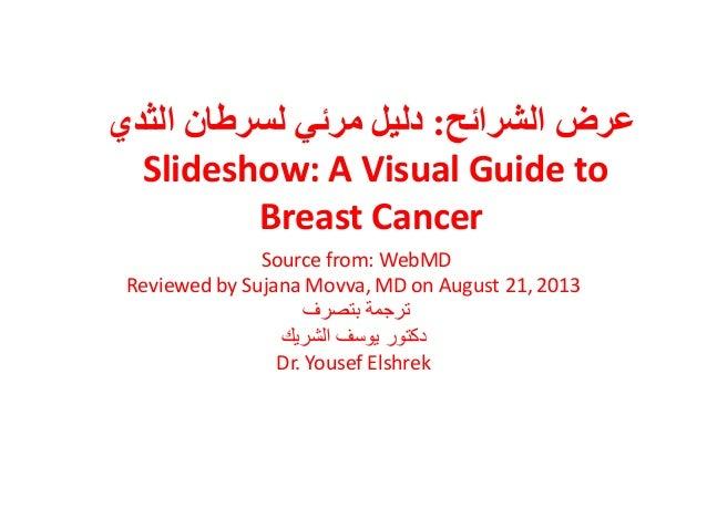 انششائخ ػشض:٘انضذ ٌنغشغب ٙيشئ دنٛم Slideshow: A Visual Guide to Breast Cancer Source from: WebMD Reviewed by S...