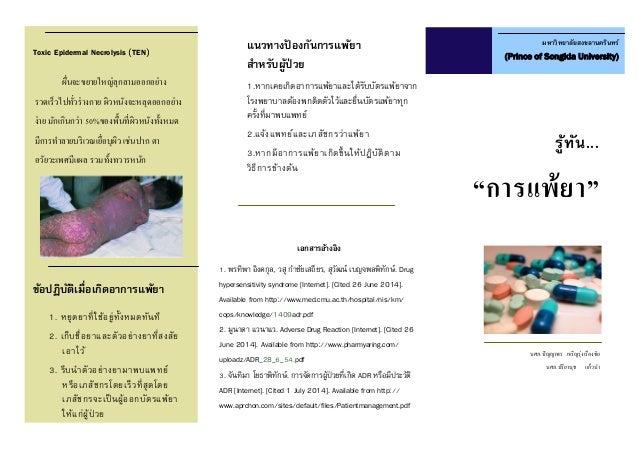 """รู้ทัน... """"การแพ้ยา"""" มหาวิทยาลัยสงขลานครินทร์ (Prince of Songkla University) นศภ.ปัญญาพร เจริญรุ่งเรืองชัย นศภ.ปรียานุช แก..."""