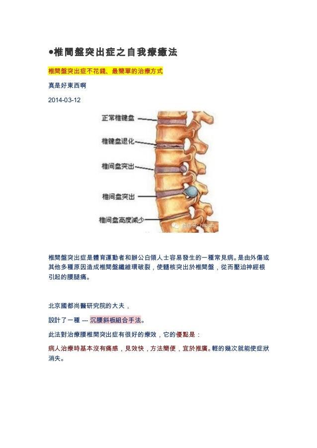 ●椎間盤突出症之自我療癒法  椎間盤突出症不花錢、最簡單的治療方式  真是好東西啊  2014-03-12  椎間盤突出症是體育運動者和辦公白領人士容易發生的一種常見病。是由外傷或  其他多種原因造成椎間盤纖維環破裂,使髓核突出於椎間盤,從而壓...