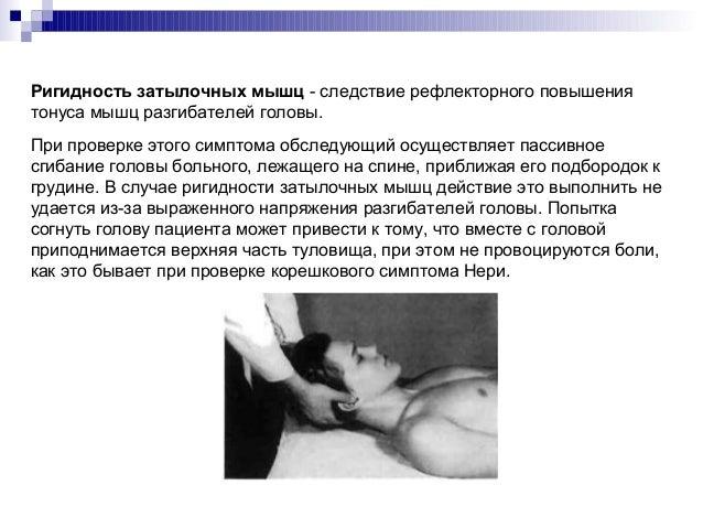 Защемление нервов грудного отдела позвоночника