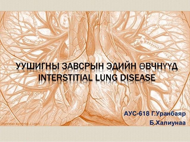 УУШИГНЫ ЗАВСРЫН ЭДИЙН ӨВЧНҮҮД  INTERSTITIAL LUNG DISEASE  АУС-618 Г.Уранбаяр  Б.Халиунаа