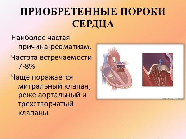 Беременность с протезом клапана сердца