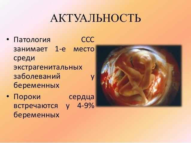 Ведение беременных при сердечно-сосудистой патологии