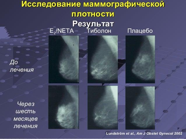 м Исследование мааммммооггррааффииччеессккоойй  E2/NETA Тиболон Плацебо  До  лечения  Через  шесть  месяцев  лечения  пплл...