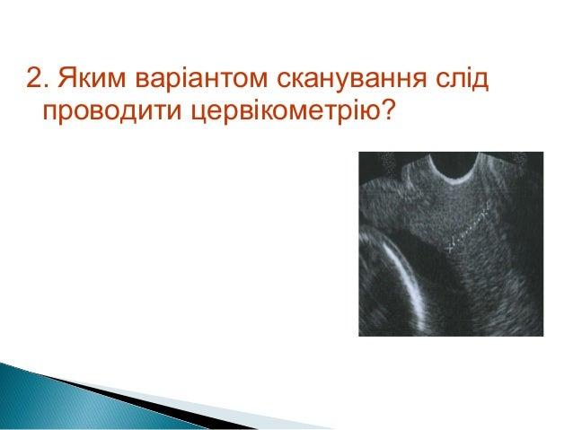 коротка шийка Slide 3