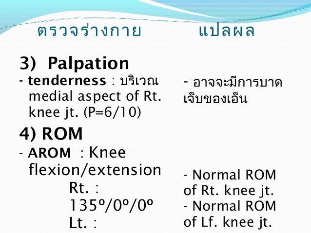 ตรวจร่างกาย แปลผล  6) Circumference  measurment  - วัดบริเวณขอบบนของ  patella  Lt. = 38 cm.  Rt. = 36.3 cm.  - วัดจากขอบบน...