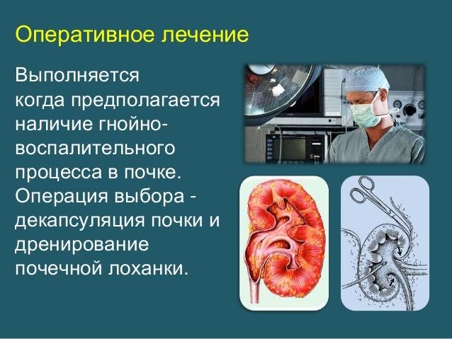 Народные средства лечения грибка кожи тела народными средствами