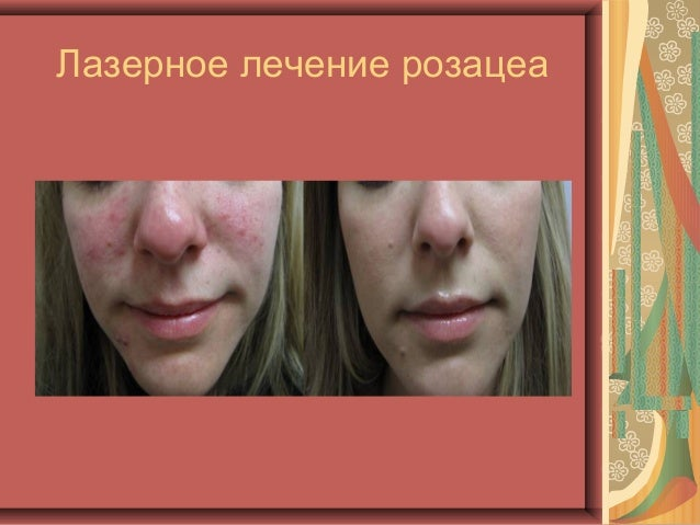 лечение розацеа лазером фото до и после