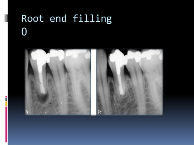 Apexification is 'a method to induce a calcified barrier in a root with an open apex or the continued apical development o...