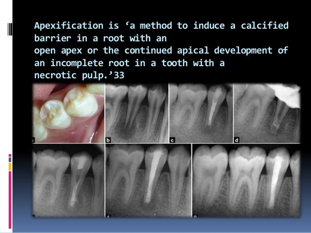 contraindication This material is not recommended for obturation to the primary teeth that expect to exfoliate since it sl...