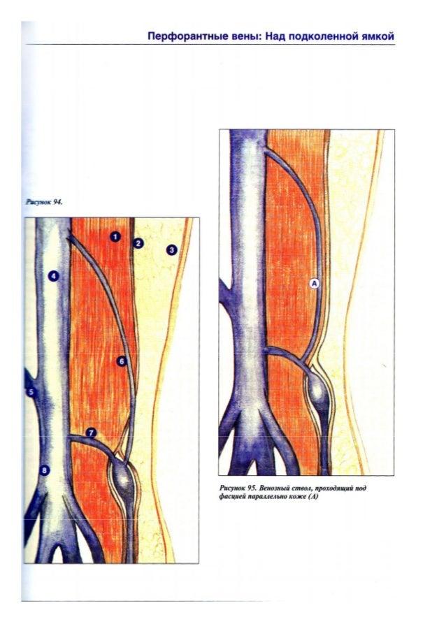 Продолжительность приема детралекса при варикозе