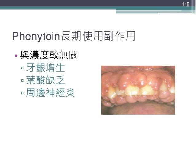 Phenytoin長期使用副作用 • 與濃度較無關 ▫ 牙齦增生 ▫ 葉酸缺乏 ▫ 周邊神經炎 118