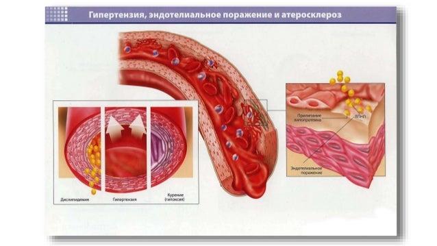 Питание при атеросклероз сосудов