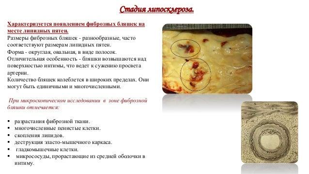 Диета при атеросклерозе сосудов головного мозга и нижних