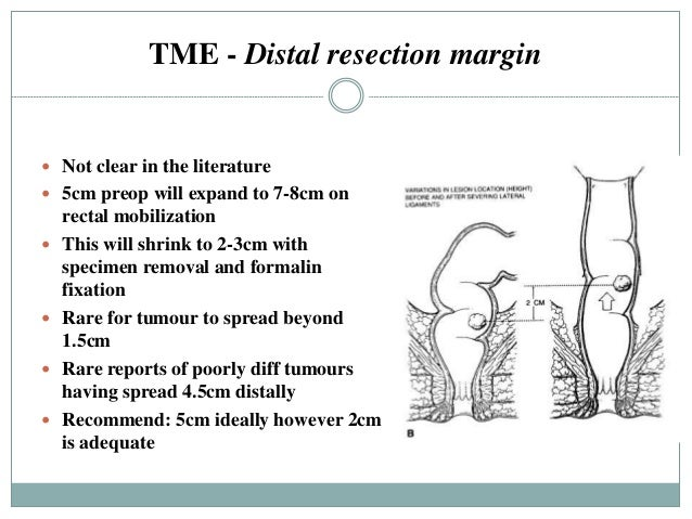 Surgery Of Rectal Cancer Potentials And Limitations Dimitris P K