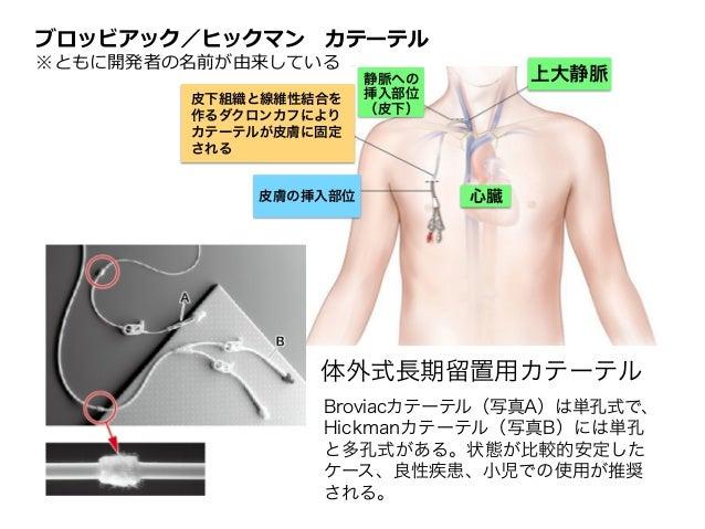 知って得する静脈栄養