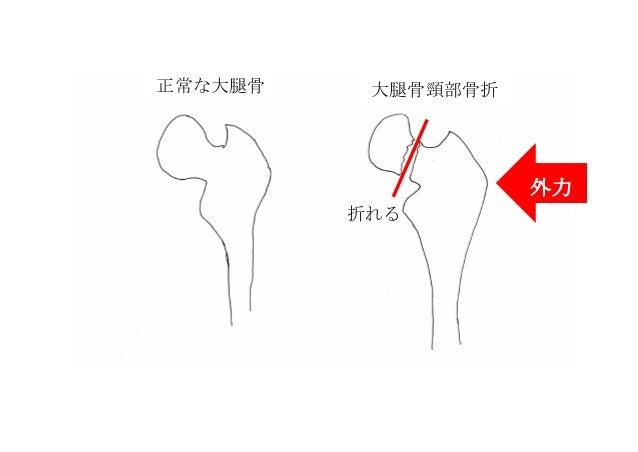 正常な大腿骨 大腿骨頸部骨折 外力 折れる