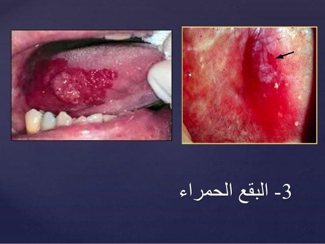 هذه العوارض قد تؤشر الى سرطان الفم!