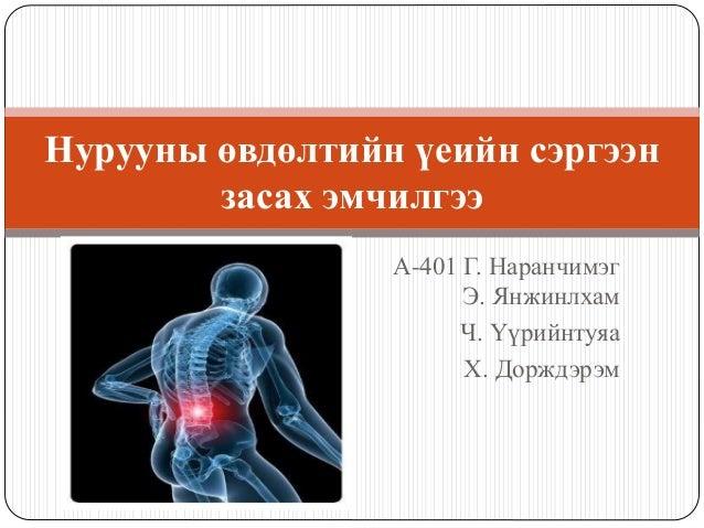 А-401 Г. Наранчимэг Э. Янжинлхам Ч. Үүрийнтуяа Х. Дорждэрэм Нурууны өвдөлтийн үеийн сэргээн засах эмчилгээ