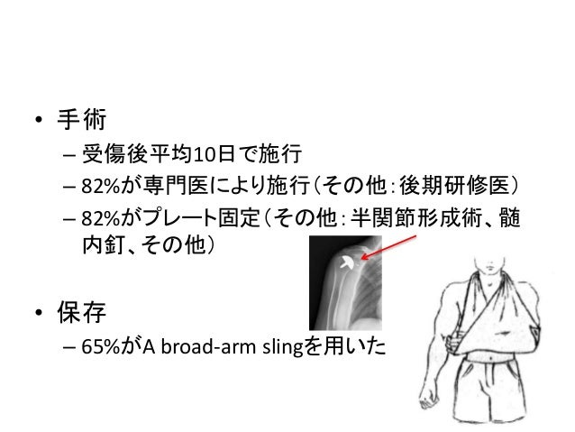 【抄読会】上腕骨近位部骨折の治療方針