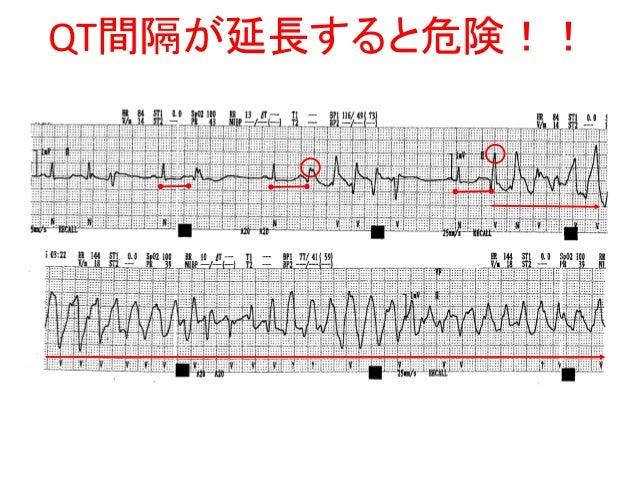 心臓の働きとその異常(3)