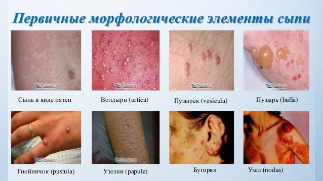 Дифференциальная диагностика сыпи у детей. Судорожный синдром