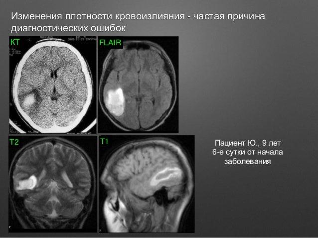 Выбор метода лучевой диагностики в неврологии.