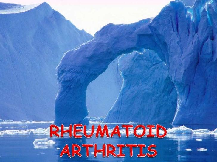 RHEUMATOID ARTHRITIS <br />MANAGEMENT<br />