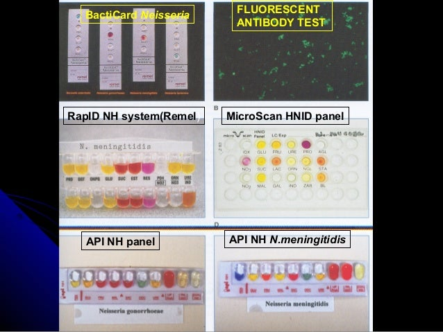 Rapid diagnosis of infectious diseases - Api up ...