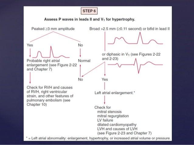 Rapid interpretation of ECG