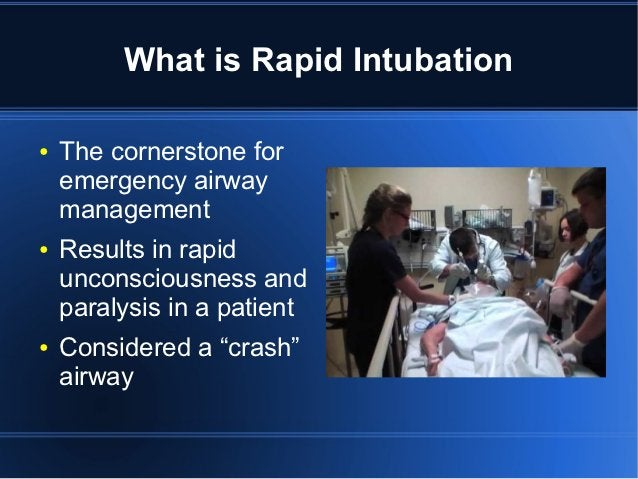 What is Rapid Intubation●   The cornerstone for    emergency airway    management●   Results in rapid    unconsciousness a...