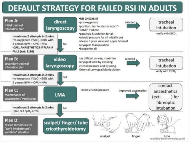 Complications of RSI • Failed to intubate & failed to ventilate • Risk of anaphylaxis • Cricoid pressure: – Failure to occ...