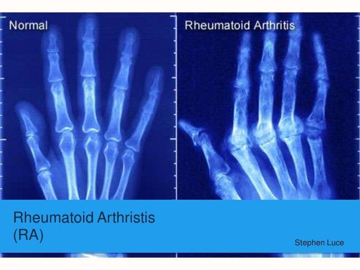 Rheumatoid Arthristis(RA)                    Stephen Luce