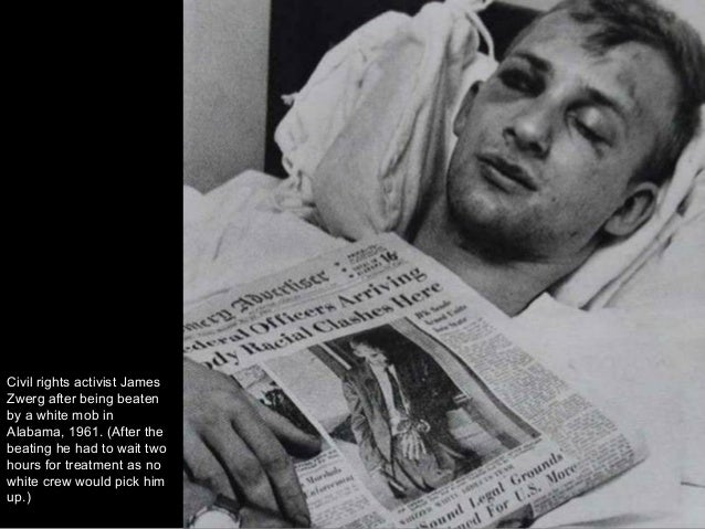 Civil rights activist James Zwerg after being beaten by a white mob in Alabama, 1961. (After the beating he had to wait tw...