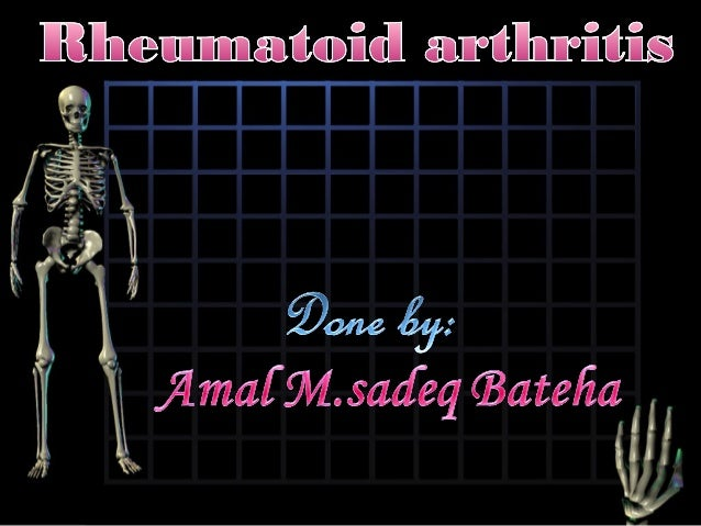 There is no singular test for diagnosing rheumatoid arthritis. Instead, rheumatoid arthritis is diagnosed based on :histor...